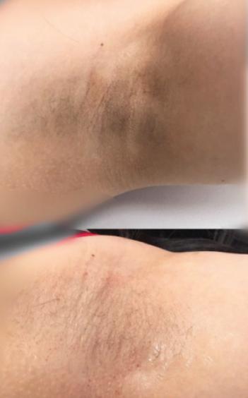 underarm whitening review cream juhi