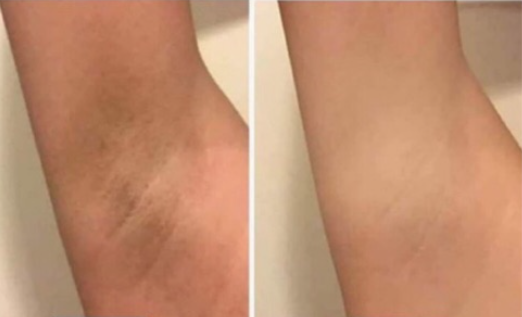 underarm whitening review 1