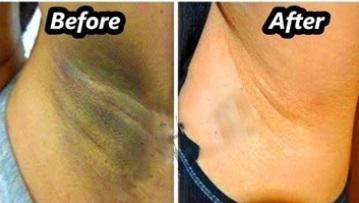 review of underarm whitening cream juhi